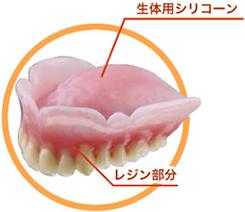 噛みしめられる入れ歯、コンフォート